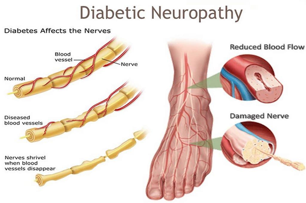 Diabetic Neuripathy rick simpson oil