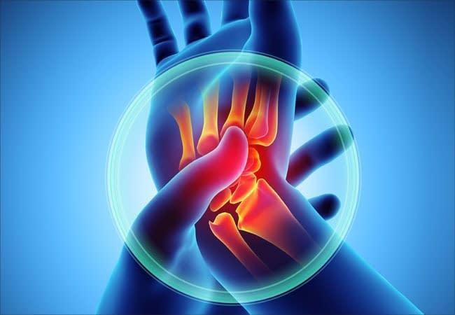 Rick Simpson Oil for arthritis