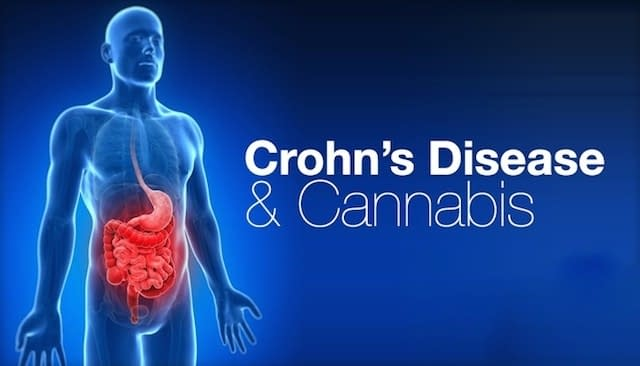 Cannabis as a therapeutic option for Crohn's disease